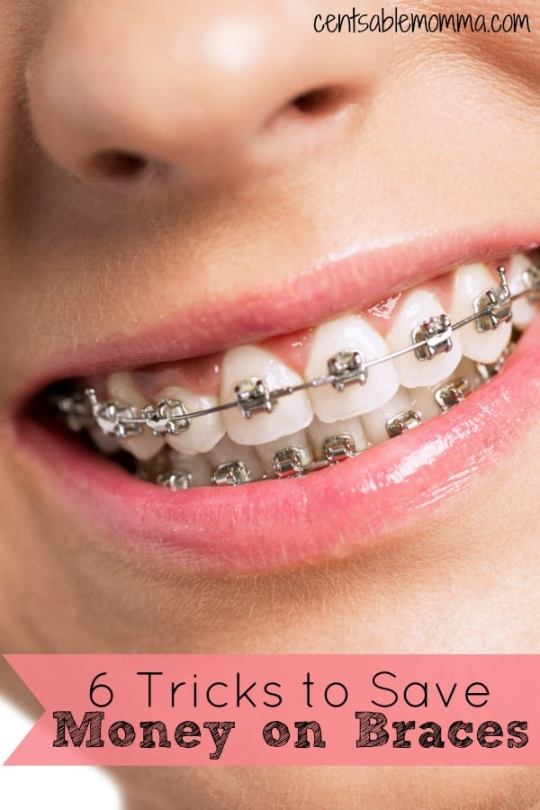 Braces can be super expensive, but there are ways to save money and make the cost work for your family. Check out these 6 tricks to save money on braces for some tips.